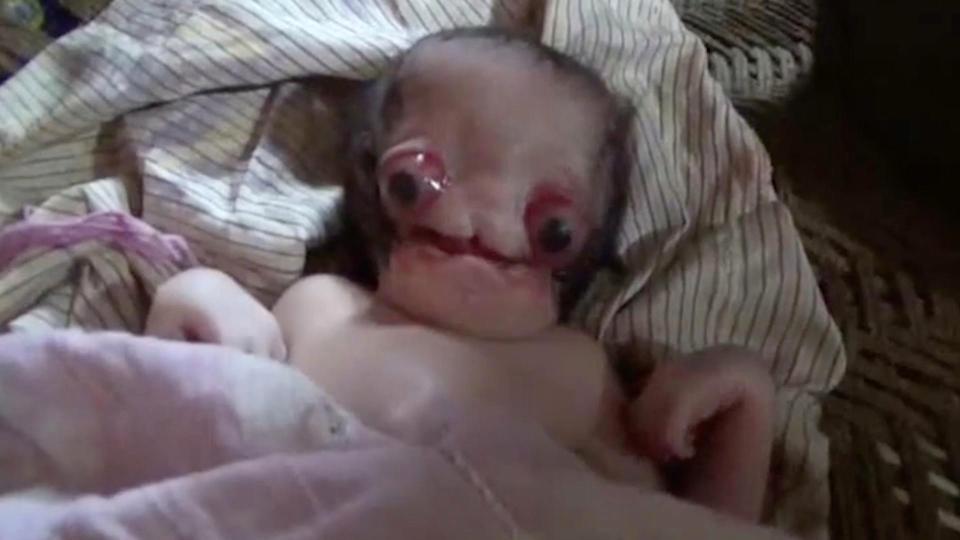 به دنیا آمدن نوزادی با قیافه ترسناک