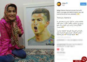 دختر معلول و هنرمند ایرانی