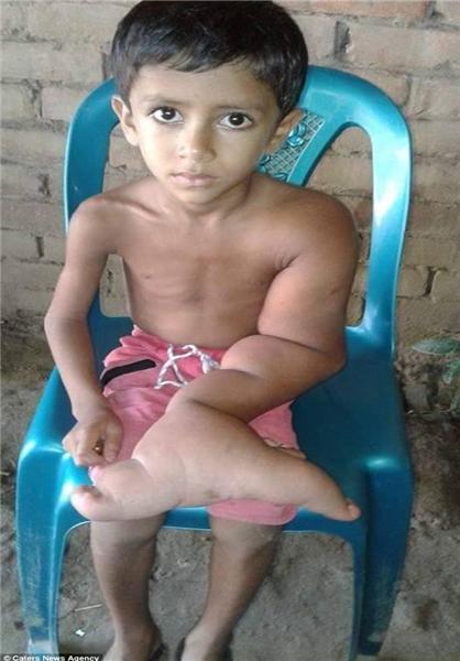 تغییر شکل ناگهانی دست کودک بنگلادشی