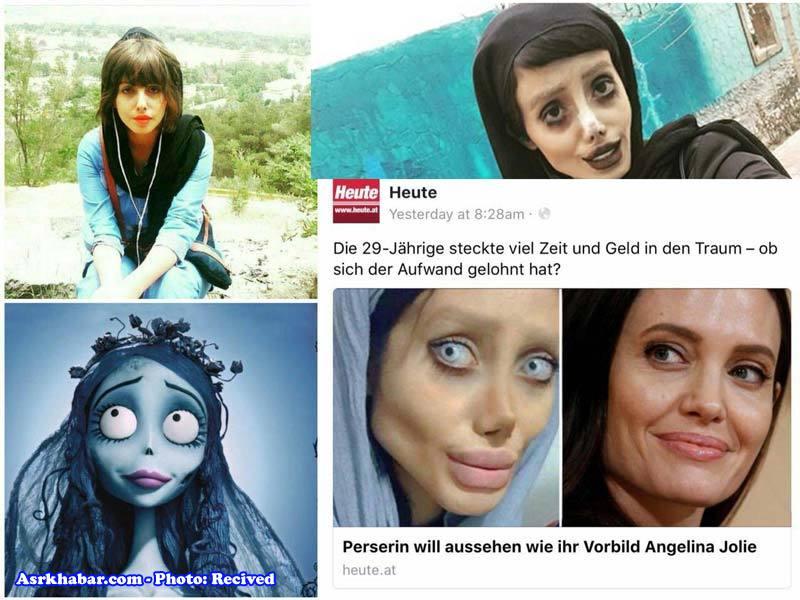 جراحی پلاستیک دختر ایرانی علاقمند به آنجلینا جولی