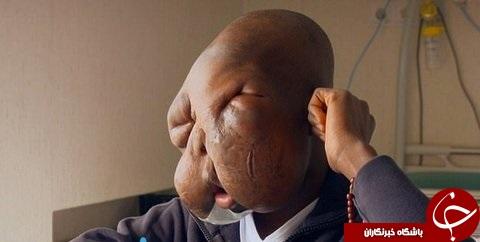 تومور بزرگ در صورت پسر نوجوان