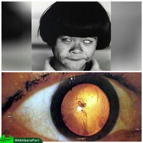 دختربچه ای با چشمان ترسناک