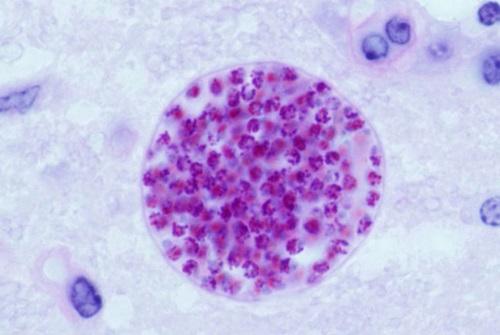 بیماری توکسوپلاسموز,درمان بیماری توکسوپلاسموز,علائم توکسوپلاسموز