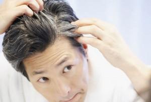 دلیل سفید شدن زودهنگام مو سر