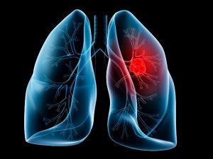 سرطان ریه و علائم ابتدایی آن + پیشگیری